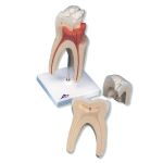 Upper Triple-Root Molar (3-Part)