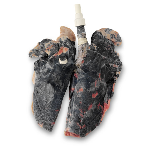 Inflatable Smoker's Lungs