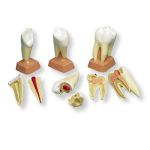 Upper Triple-Root Molar with Caries (2-Part)