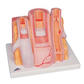 Arteriosclerosis Model on Base (Cross Section of Artery, 2-Part)
